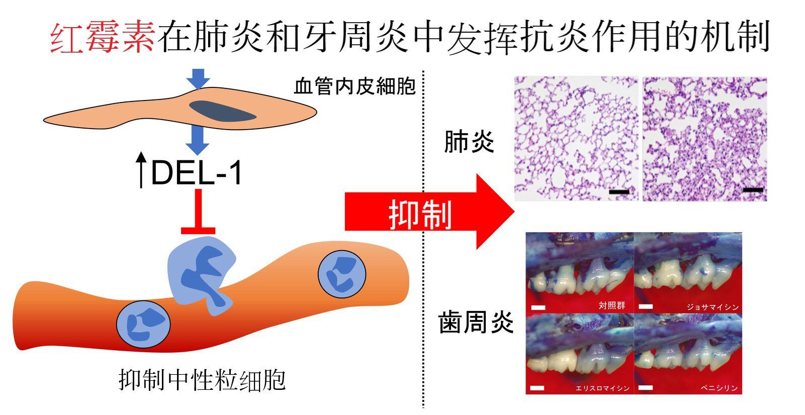 红霉素在肺炎和牙周炎中发挥抗炎作用的机制